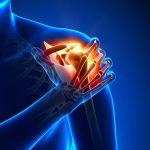 תביעת נזיקין ופיצויים בעקבות קרע בכתף